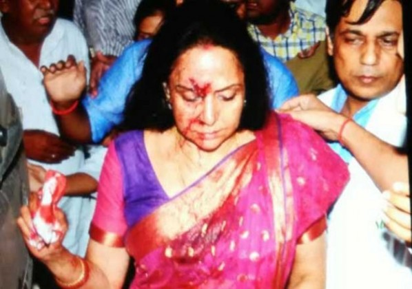 hema malini pictures after accident